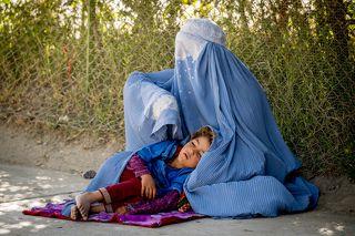 Такая картина - не редкость на улицах Кабула