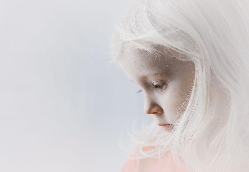 девочка. портрет Соняphoto preview