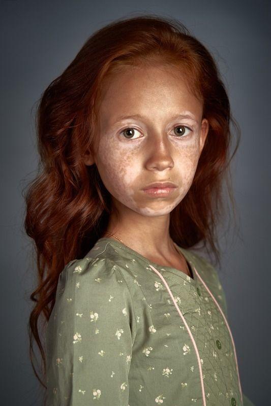 портрет, девочка, дети, витилиго, рыжая, серия, студия, Дианаphoto preview