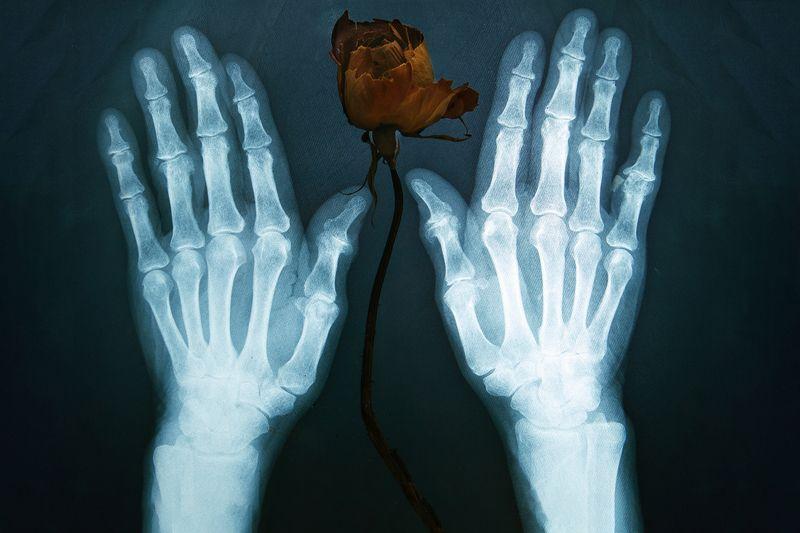 рентген, руки, цветок ***photo preview